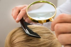 Head Lice Removal Tips